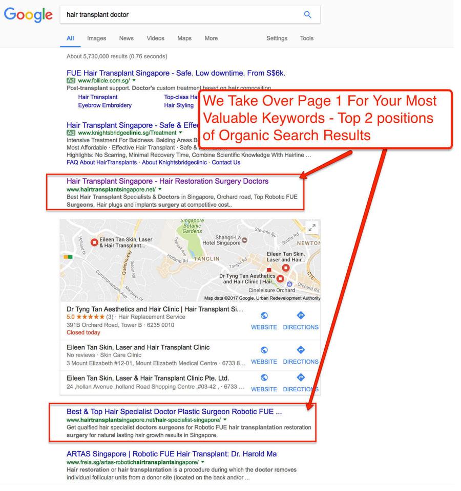 HairTransplant-Singapore-SEO-Company-Best-SEO-Services-GooglePage1-Ranking